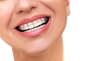 Dentist in Carson City - Orthodontic Treatment. Dental - DentistCarsonCity.com